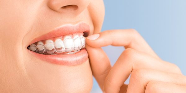 What Do Invisalign Braces Cost? Are They Worth It?